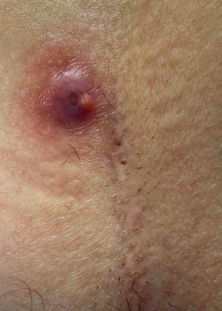 Symptom Blutung bei Steißbeinfistel