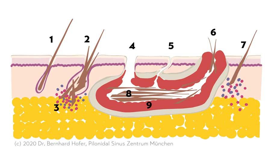 Entstehung der Steißbeinfistel Schemazeichnung
