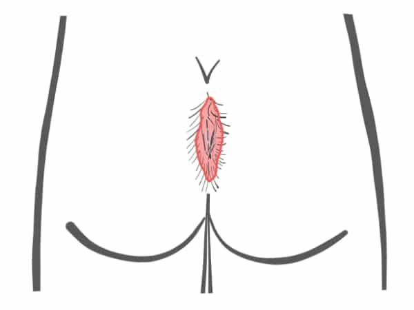 Schemazeichnung Steißbeinfistel Typ IV B