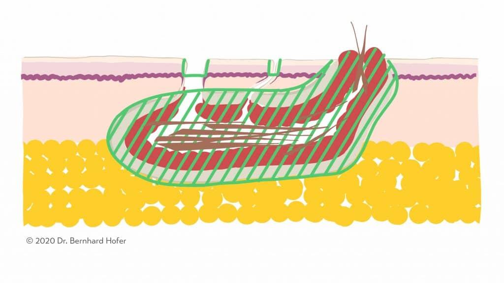 Schemazeichung zum Ausmaß der Fistelentfernung bei der Sinusektomie