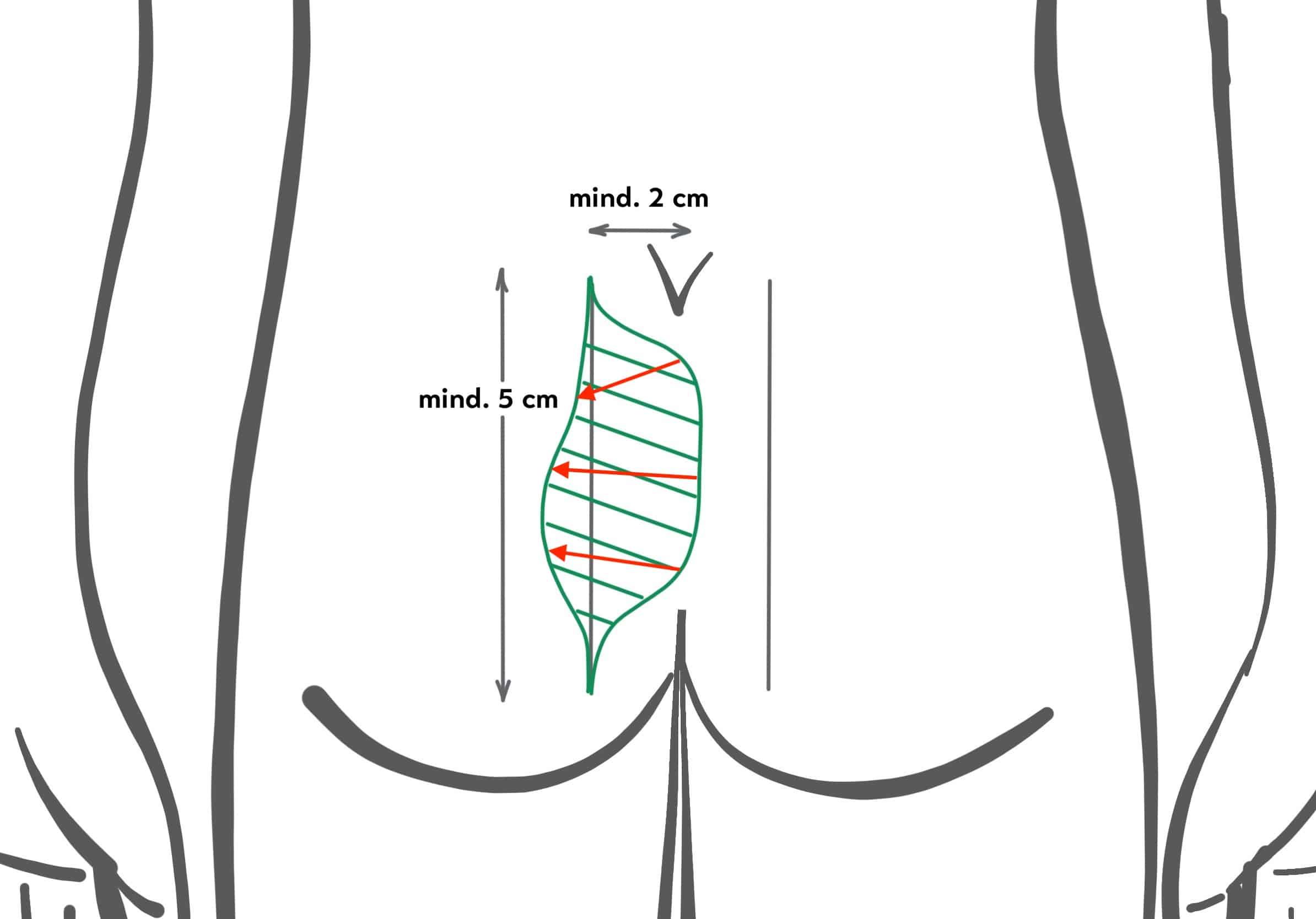 Asymmetrische Ausschneidung