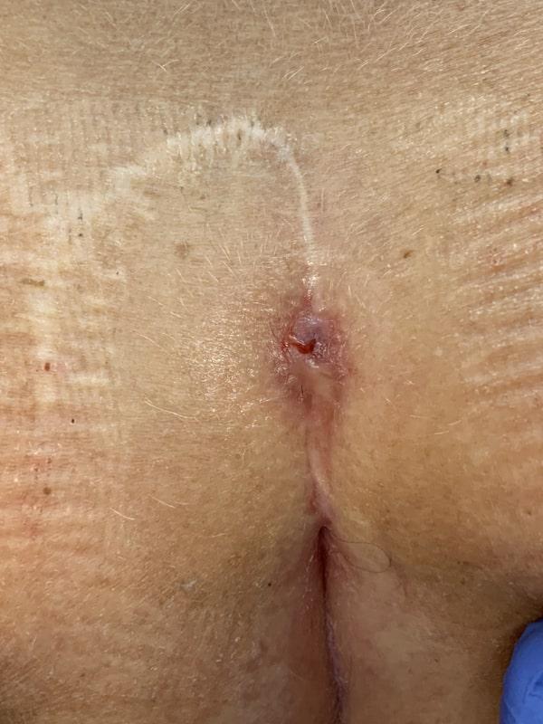 Typ IV A Rezidiv nach Limberg OP wegen Sinus pilonidalis