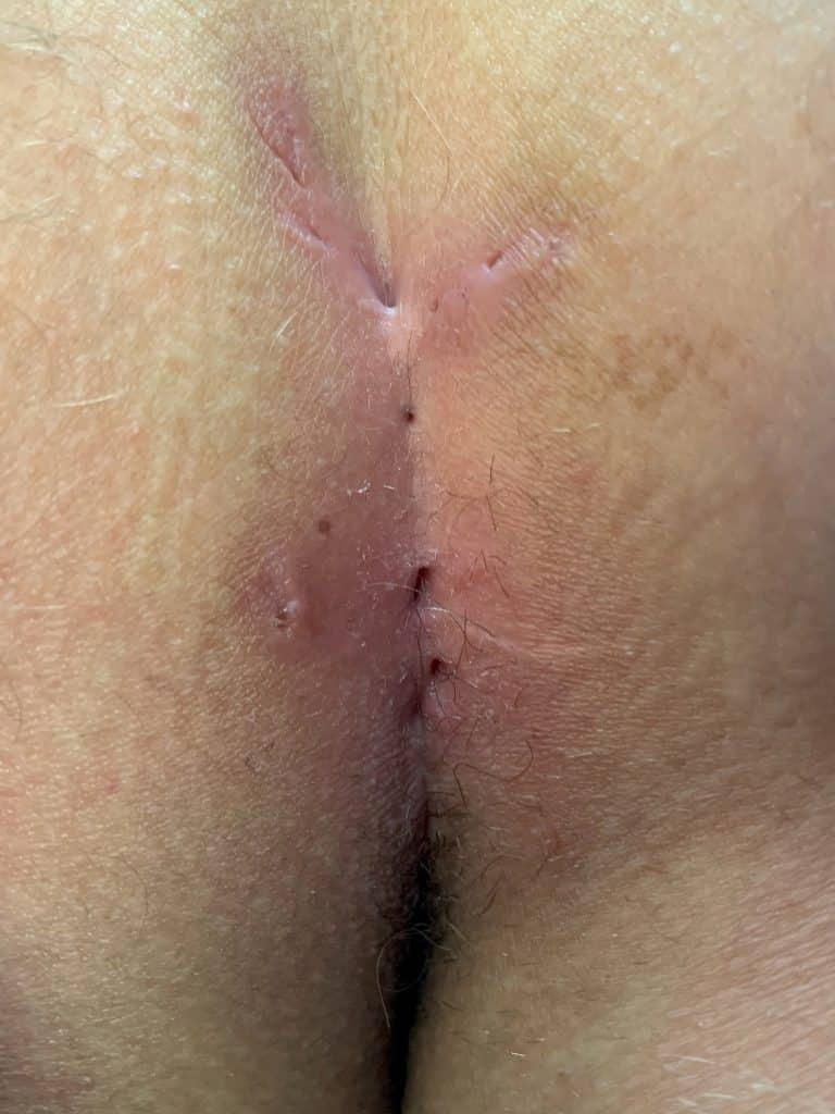 Mischform einer Steissbeinfistel mit der Akne inversa
