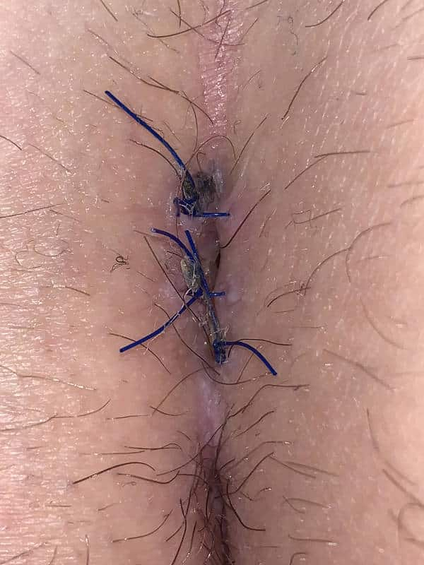 Komplikation bei Pilonidalsinus OP mit Naht