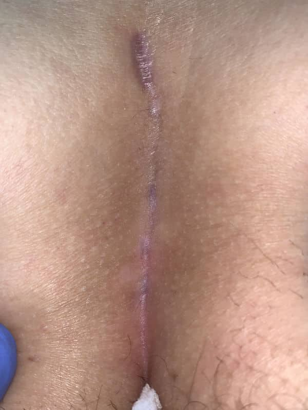 Bild einer verheilten Steißbeinfistel