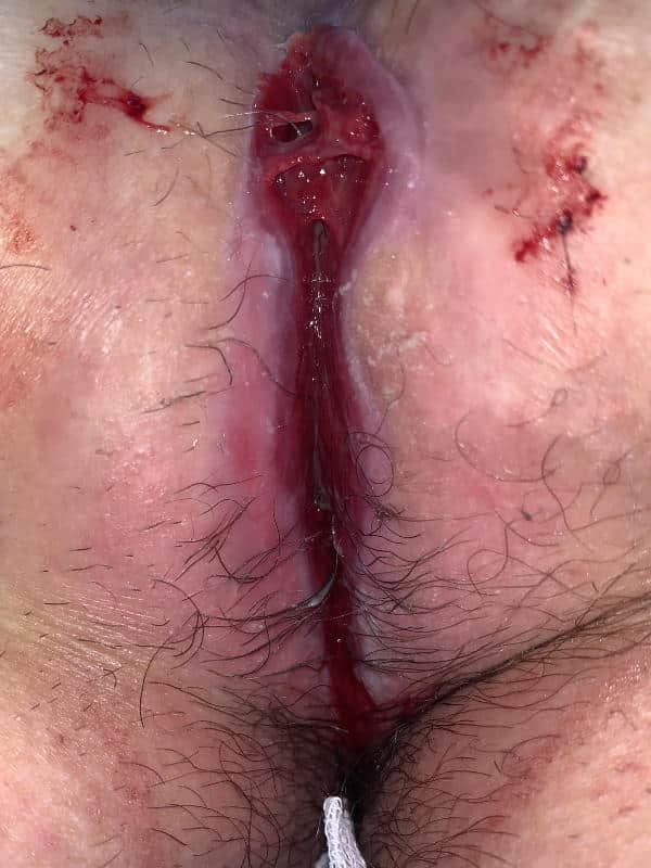 Bild einer durch einwachsende Haare an der Heilung gehinderte Wunde