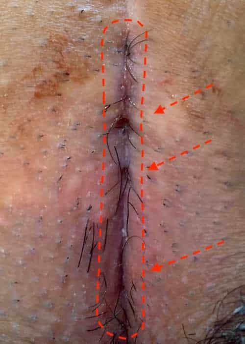 Typ IV B Steißbeinfistel, mehrere Eintrittspforten für Haare in der alten Narbe