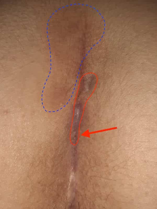 Bild einer erneut aufgetretenen Steißbeinfistel