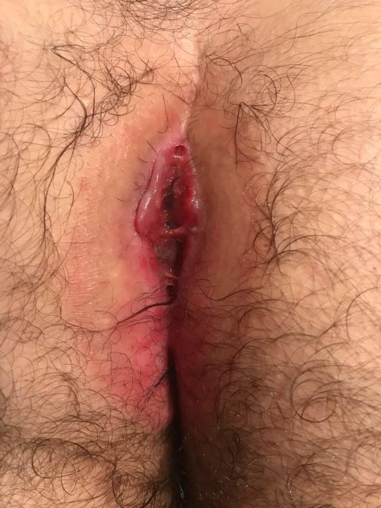 Steißbeinfistel Wunde heilt nicht