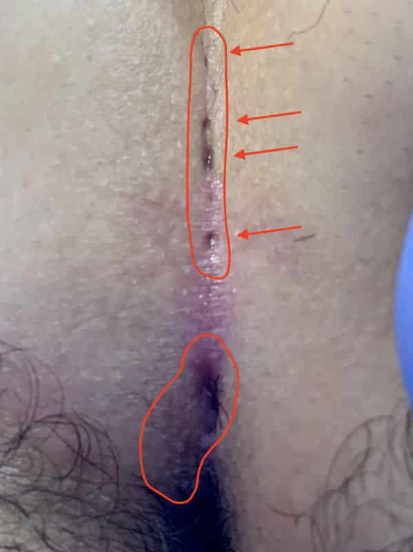 Foto von 2 unabhängigen Steißbeinfistel beim gleichen Patienten