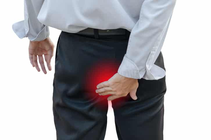 Starke Schmerzen sind das Symptom der akuten Steißbeinfistel – Steißbeinabszess