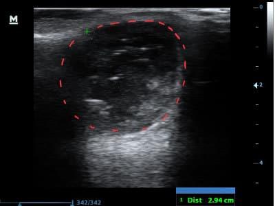 Ultraschall Bild des gleichen Steißbeinabszesses