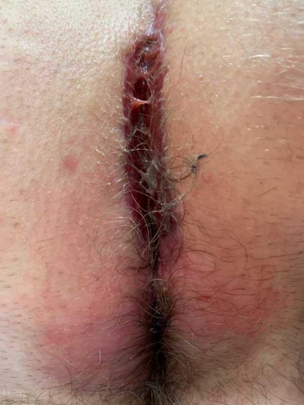 Typ IV B Fistel bei stark behaartem Patienten