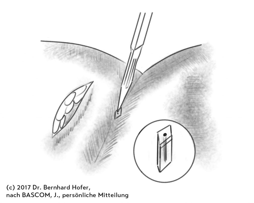 Abbildung des Pit Picking nach einer Zeichnung von John Bascom