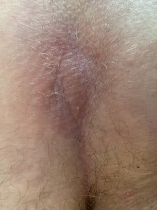 Ultraschall Bild Steißbein Abszess